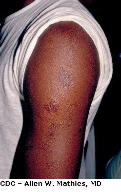 Viral Skin Infection Herpes Gladiatorum Mat Herpes