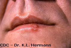 Herpes simplex virus type 1 (HSV-1) on lip