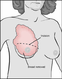 Diagram of Total Mastectomy