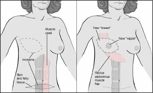 Breast Reconstruction with Tissue Flaps