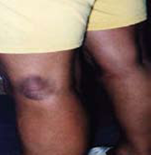 Example of Eyrtheman Migrans Rash - Picture 4